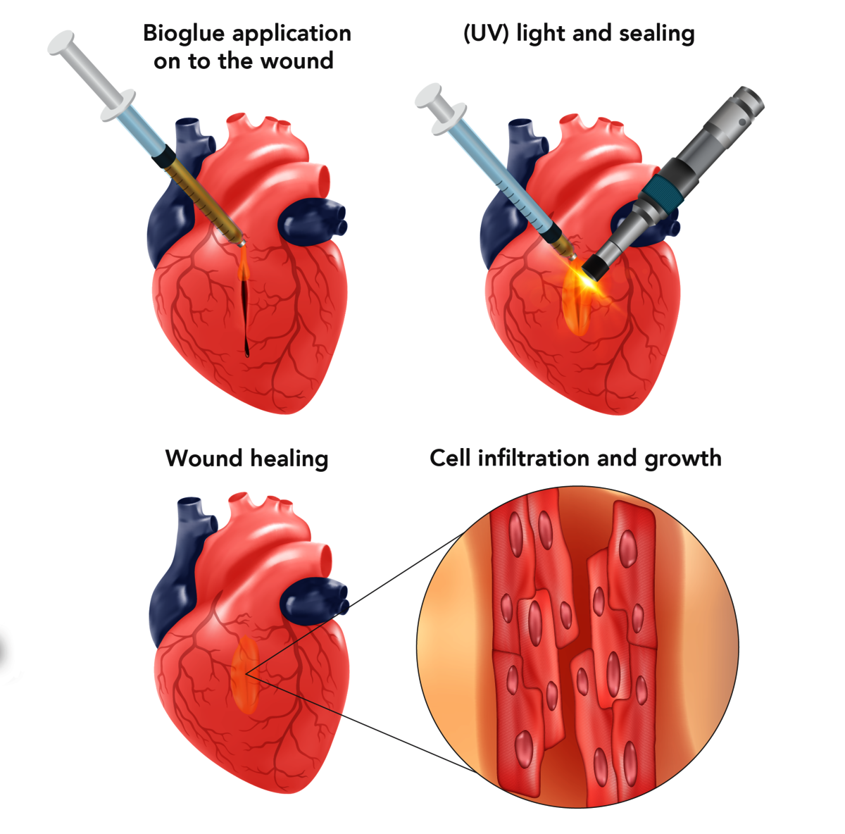 GelMA application in heart wound